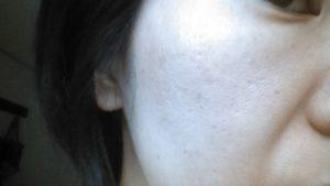 ニキビ跡の肌